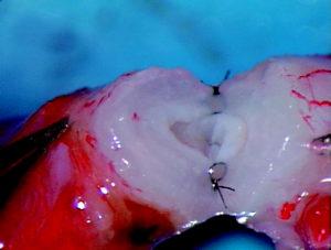 reversao de vasectomia