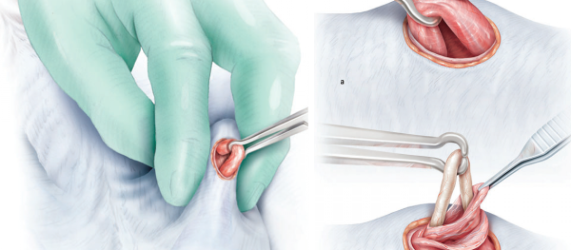 Fonte: Shergill I, et al. Surgery Illustrated – Surgical Atlas – Vasectomy illustrated. BJU Int. 2012, 10 9 , 1116–1127.